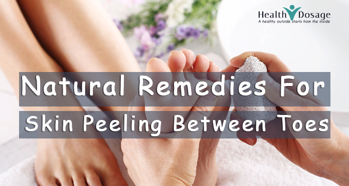 natural remedies for skin peeling toes