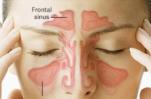 Sinusitis Headache