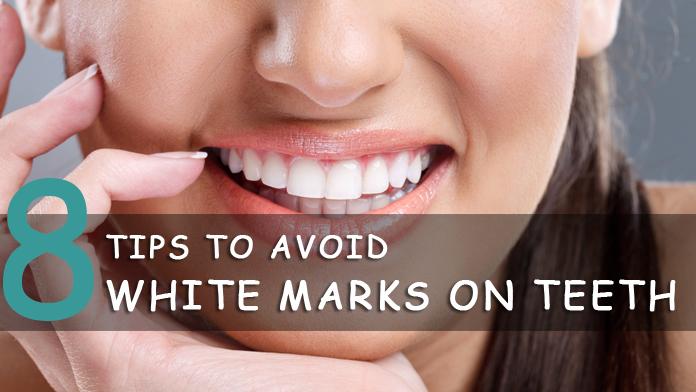 8 Tips To Avoid White Marks On Teeth