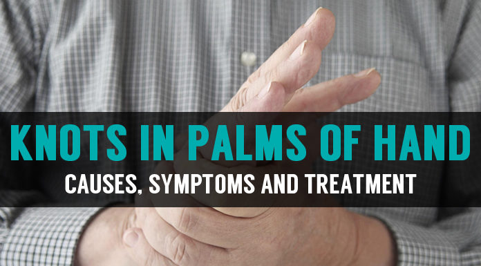 causes symptoms and treatment of knots in palms of hand