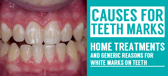 treatments and generic reasons for white marks on teeth