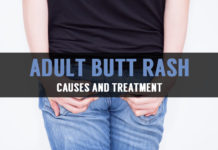 adult butt rash