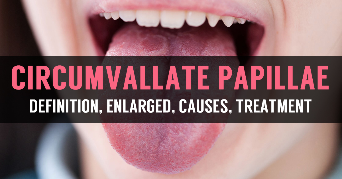 Learn Enlarged Circumvallate Papillae Causes And Treatment
