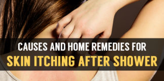 causes and home remedies for skin itching after shower