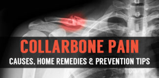 collarbone pain causes homeremedies and prevention