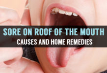 sore on roof of the mouth causes and home remedies