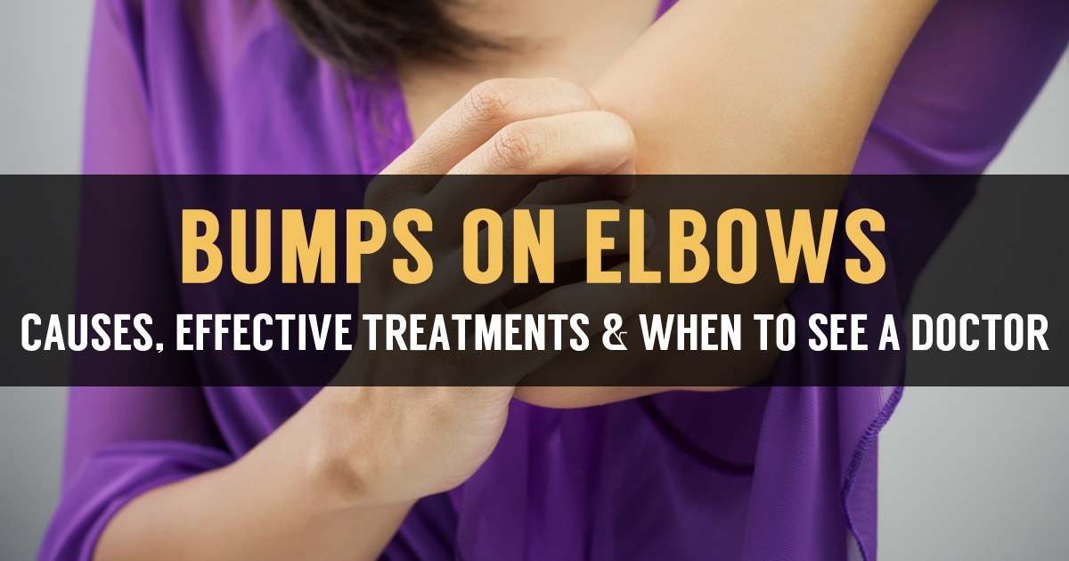 Itchy Bumps On Elbows Causes And Natural Treatment