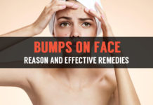 effective remedies to cure bumps on face