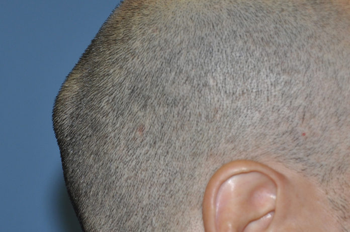 Lump On Back Of Head Learn Most Common Reason Of Bump On