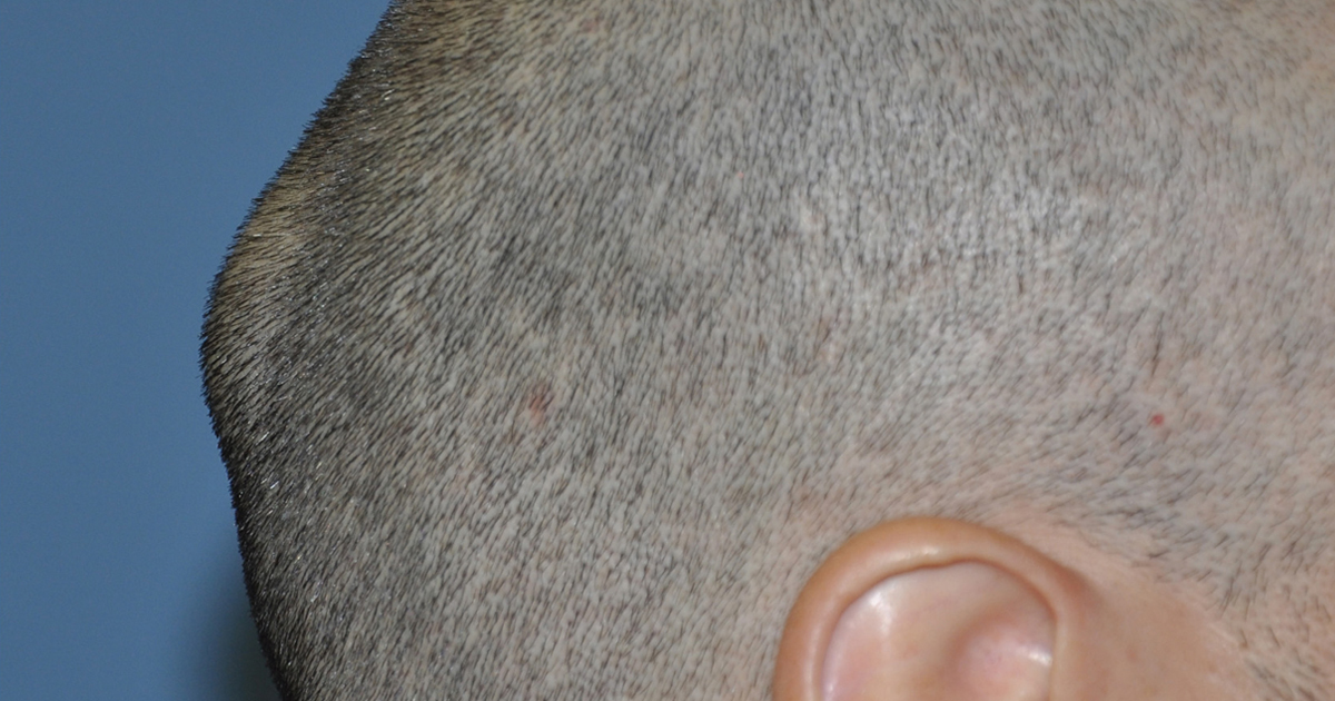 Lump On Back of Head: Learn Most Common Reason of Bump on Back of Head